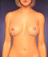 breast_reduction-3